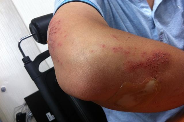 lesiones y daños materiales